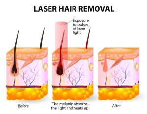 Wat is laser ontharen en hoe werkt het