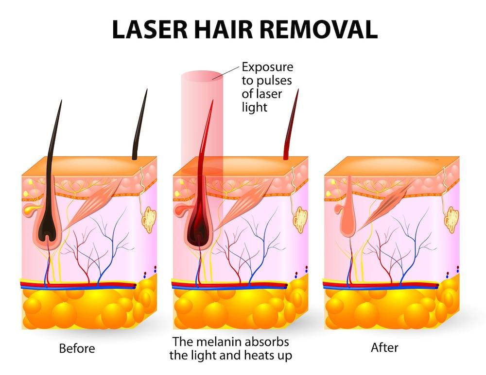 Hoe werkt laser ontharen